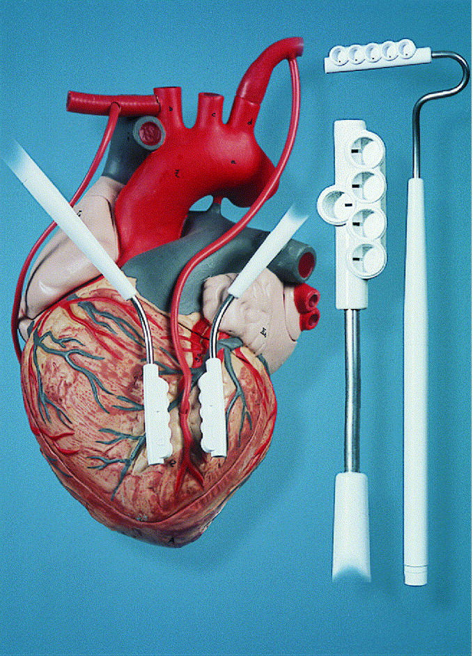 offpump coronary bypass grafting how to use the octopus