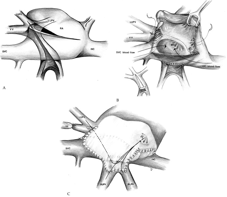 repair of transposition of the great arteries with total