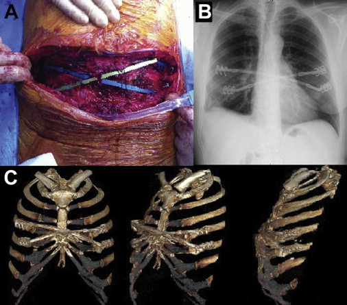 Sternal Dehiscence After Clamshell Incision In Lung